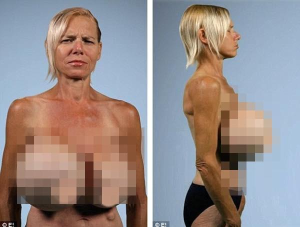 Khi bịch silicon đệm trong ngực bỗng nhiên bị vỡ.