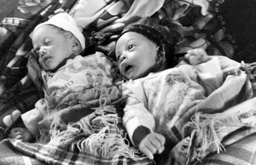 Hai em bé song sinh đặc biệt: Bé sau cách bé trước 29 ngày. (Ảnh: Internet)