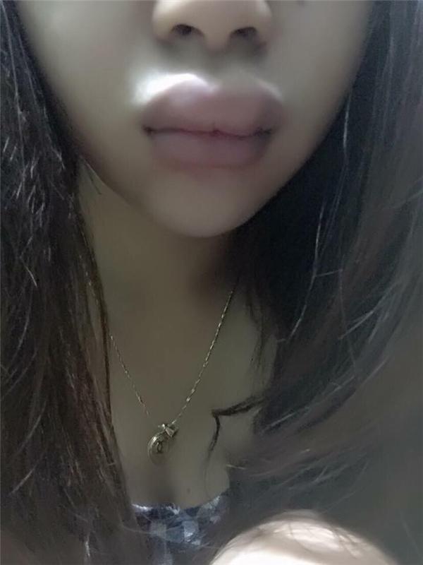Đôi môi khốn khổ của cô nàng dùng phải son