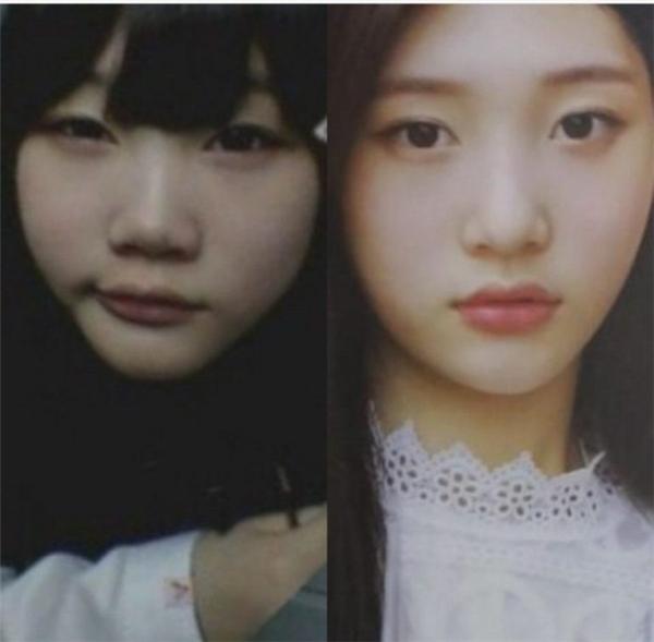 Nhan sắc trong quá khứ bình thường của Jung Chaeyeon