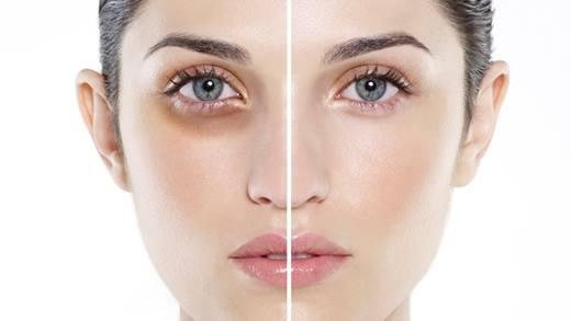Hai giải pháp tối ưu nhất để đánh tan quầng thâm mắt