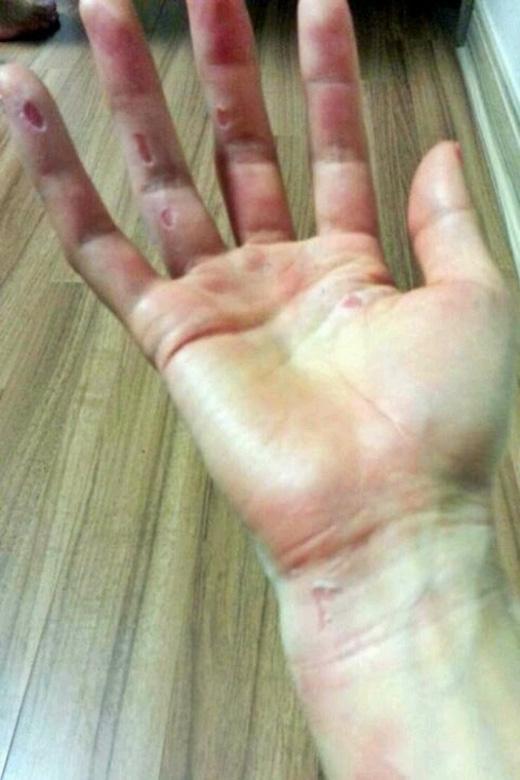 Bàn tay bị trầy xước nặng do múa cột.(Ảnh: Internet)