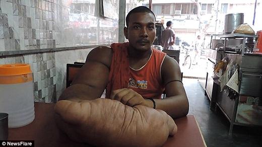 AnhBablubị cả gia đình và dân làng kì thị chỉ vì có dị tật ở cánh tay. (Ảnh: Internet)