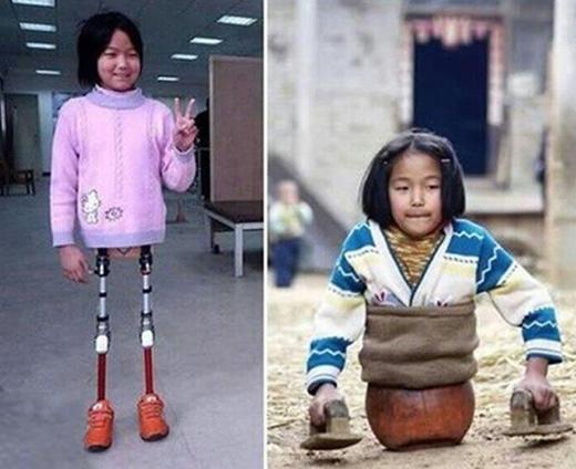 Nghị lực vươn lên và mạnh mẽ đối diện với khó khăn, thấy bại của hai cô bé này khiến nhiều người cảm động.(Ảnh: Internet)