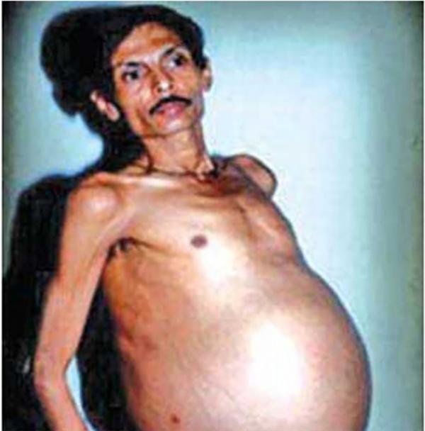 Người đàn ông này được phát hiện mang thai em trai song sinh của mình trong suốt 36 năm. (Ảnh: Internet)