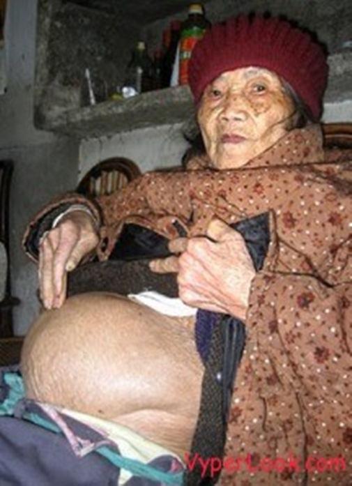 Cụ bà đã mang thai trong hơn 40 năm. (Ảnh: Internet)