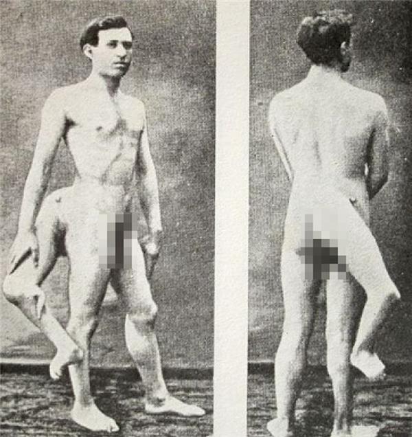 Cơ thể của Lentini có 3 chân, 4 bàn chân, 16 ngón chân, 2 bộ phận sinh dục.