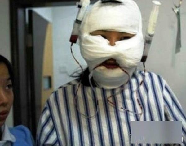 Người phẫu thuật chuyển giới gọt cằm để có gương mặt thon gọn V-line. (Ảnh: Internet)