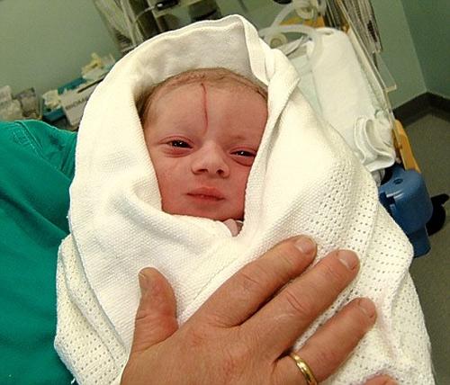 Xót xa những em bé sơ sinh bị bác sĩ mổ đẻ trúng người