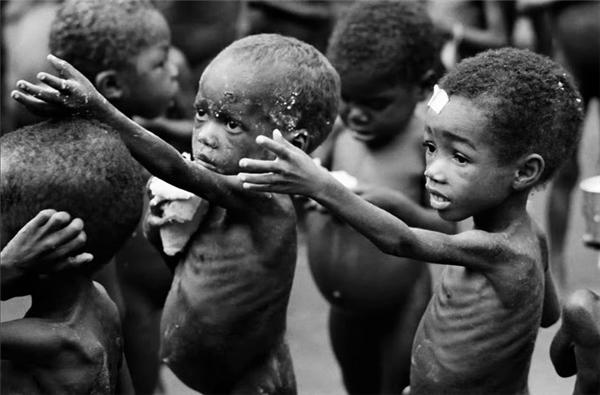 Các em bé Châu Phi bị suy dinh dưỡng trầm trọng. (Ảnh: Internet)