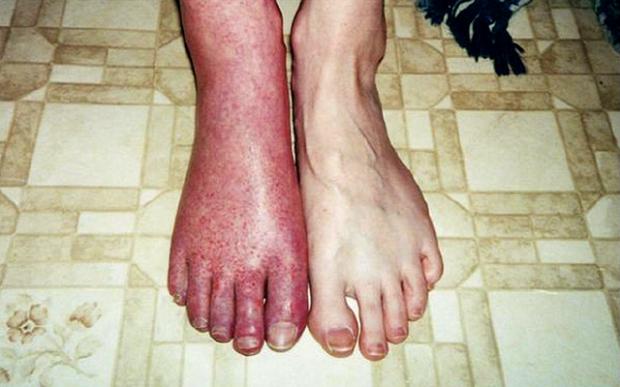 Hình dạng khủng khiếp của bàn chân khi nhiễm loại nấm quái ác này. (Ảnh: Internet)