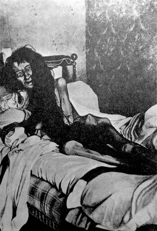 Bức ảnh này chụp năm 1901, người phụ nữ trong bức ảnh chính là Blanche Monnier. Chuyện là năm 25 tuổi, Blanche Monnier đem lòng yêu thương vị luật sư sống gần nhà cô. Mẹ cô ngăn cản nhưng không thành, bà đành đem cô nhốt vào phòng và từ đó cô không được nhìn thấy ánh sáng mặt trời. 24 năm sau, khi được phát hiện, Blanche Monnier chỉ nặng khoảng 25 kg, khỏa thân và thoi thóp trong căn phòng chứa đầy rác, phân người, chuột và những thứ thối rữa. (Ảnh: Internet)