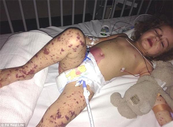 Bé Parkyn với đôi chân đầy thẹo vết nghiêm trọng sau 15 cuộc phẫu thuật loại bỏ các tế bào chết mà căn bệnh chết người này để lại.