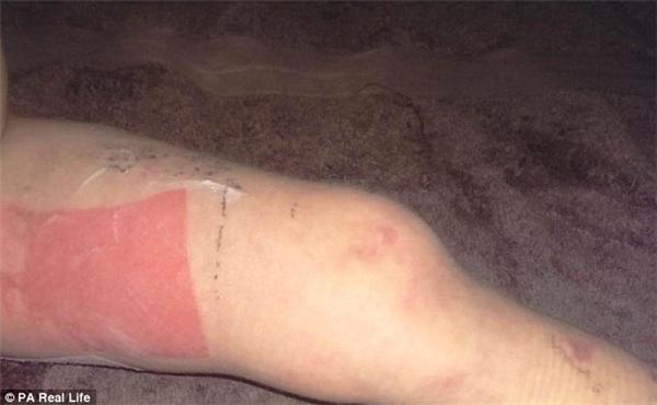 Ban đầu các đốm đỏ trên người bé trông không khác rôm sảy, nhưng chúng nhanh chóng lan rộng và sậm màu đi đến đáng sợ.