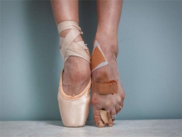 Với đôi chân đầy dấu vết của thương tích thế này, bạn có thể không bao giờ mang một đôi giày lộ chânbình thường được. (Ảnh: Internet)