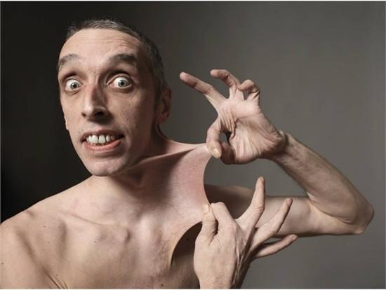 Điều kỳ lạ ở người đàn ông này là da anh có thể kéo dài theo nhiều hướng. Người đó là Garry Turner, một công dân Anh. Ngày 28/10/1999, Garry đã lập kỉ lục thế giới khi kéo da bụng dài 15,8 cm. Sau đó, các bác sĩ đã phát hiện ra rằng Garry bị rối loạn các tế bào liên kết da. (Ảnh: Internet)