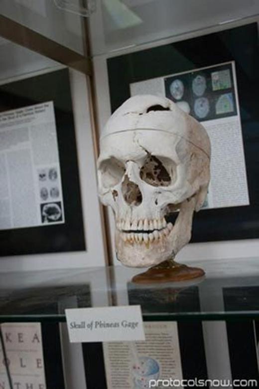 Bộ não của Gage được trưng bày ở viện bảo tàng. (Ảnh: Internet)