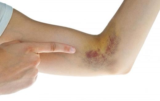 Bầm tímlà biểu hiện của việc tổn thương dưới da. (Ảnh: Internet)