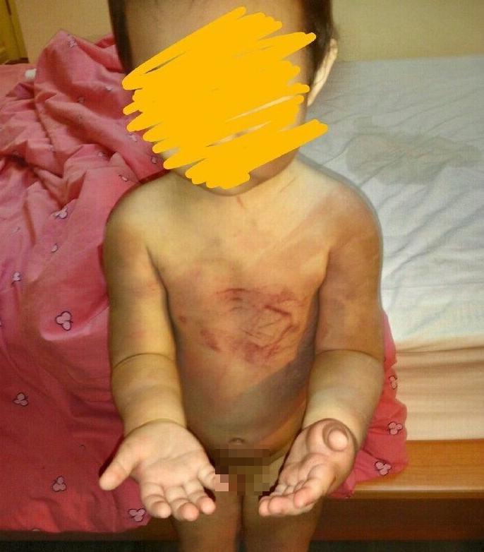 Tay, chân, vai, lưng của bé đều bị thương, khắp cơ thể đều rướm máu và thâm tím.