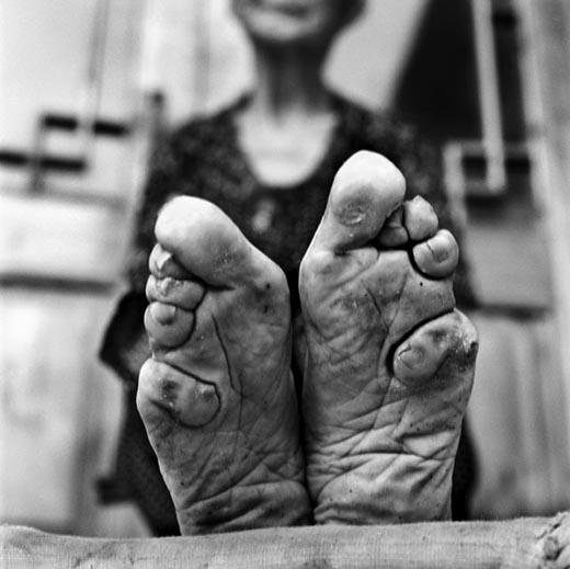 Bàn chân không còn nguyên vẹn sau khi bó suốt hàng năm trời. (Ảnh: Internet)