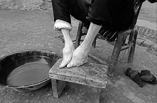 Một cụ già với đôi bàn chân biến dạng. (Ảnh: Internet)