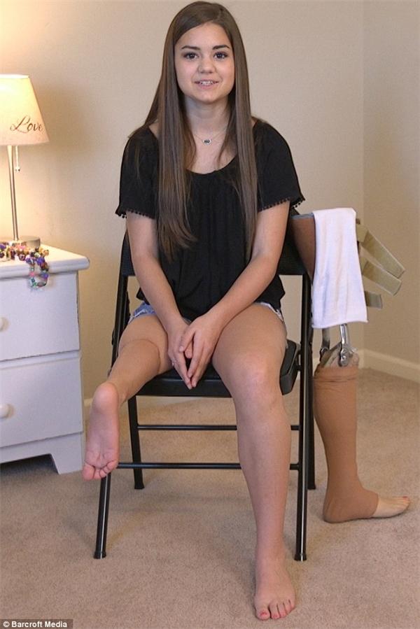Gabi với phần cẳng chân được ghép vào đùi, bên cạnh là chiếc chân giả giúp cô có thể tiếp tục múa ballet.