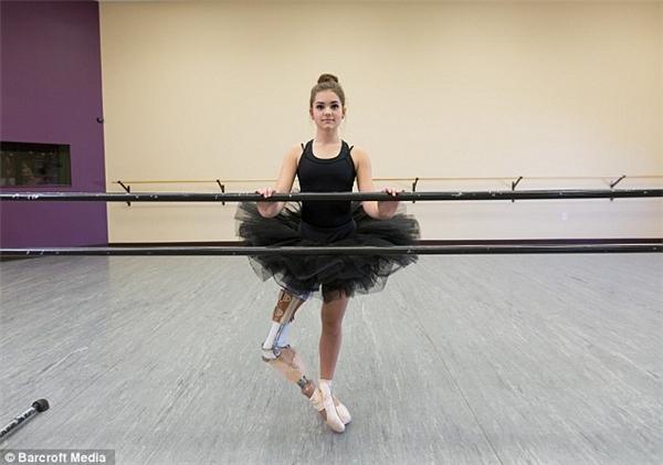 Khâm phục cô gái phải ghép cẳng chân vào đùi vẫn múa ballet