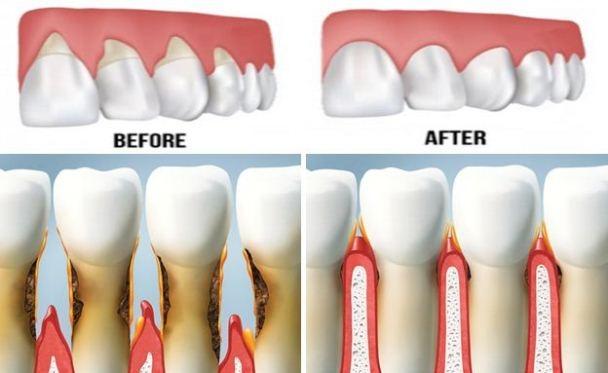 Tụt lợi là quá trình lộ bề mặt chân răng do sự di chuyển về phía chóp chân răng của lợi. (Ảnh: Internet)