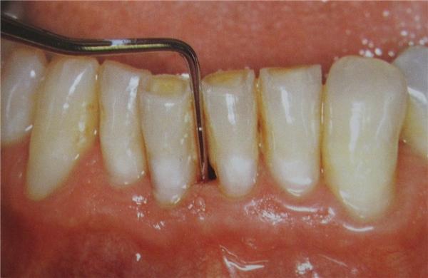 Viêm chân răng là một căn bệnh rất nguy hiểm. (Ảnh: Internet)