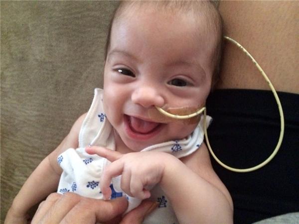 Ngay từ khi sinh ra, bé Maddy đã bị căn bệnh thận đa nang hành hạ. (Ảnh: Internet)