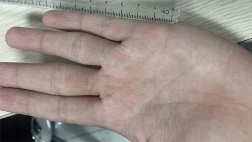 Cách đo chỉ tay xác định năm kết hôn