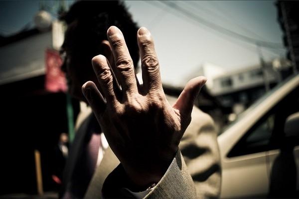 Một dấu hiệu dễ nhận ra của các thành viên Yakuza: ngón tay út bị cụt. (Ảnh: Internet)