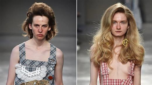 Hoảng hốt với dàn người mẫu mặt đầy mụn trên sàn catwalk