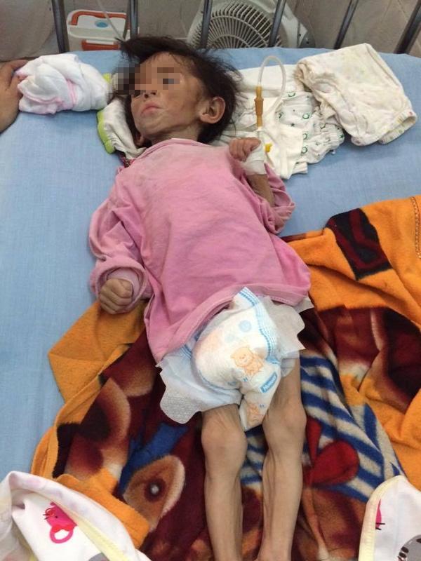 Mẹ và anh trai mất tích, cha lại nghèo nên cô bé 14 tháng tuổi nặng chỉ 3,5kg. Ảnh: Internet