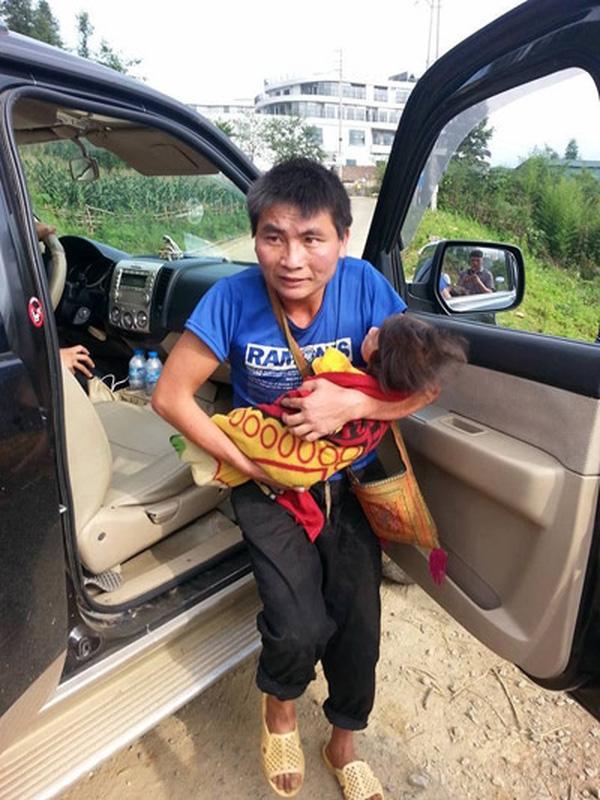Anh Lư không biết chăm sóc con nên bé Yến Nhi đã bị suy dưỡng. Ảnh: Internet