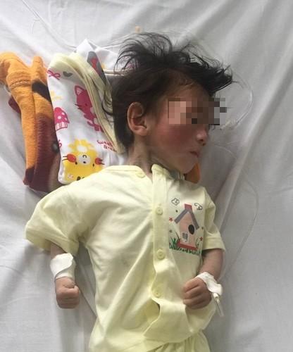 Cô bé nhỏ tội nghiệp đang nằm tạiBệnh viện Nhi Trung ương. Ảnh: Internet