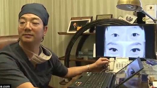 Trào lưu phẫu thuật bọng mắt bỗng dưng nở rộ dù rất nguy hiểm