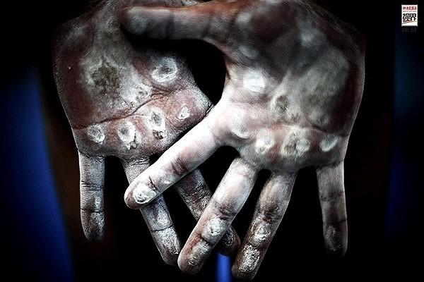 Đôi bàn tay chai sần sau mỗi lần tập luyện.