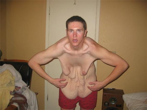 Cơ ngực chảy xệ của anh chàng còn hơn phụ nữ U80 khiến người ta thực sự khóc thét.
