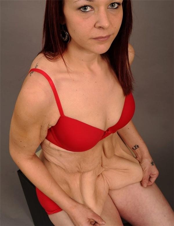 Khi giảm cân trở thành nỗi kinh hoàng của phụ nữ.