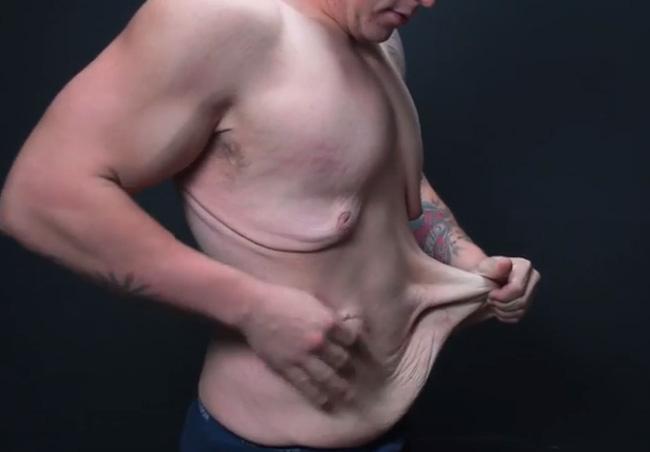 Lớp da thừa này có đem cắt bỏ làm túi da người được không nhỉ?