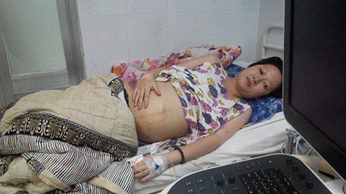 Hình ảnh bà mẹ trẻ mang bầu bị ung thư máu khiến nhiều người xót xa.