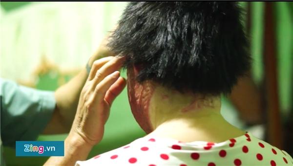 Nhờ sự tận tình của bác sĩ Huy Thọ, Thuỳ Dung đã có thể thắp lên hi vọng phục hồi phần nào những thương tổn. (Ảnh: Zing.vn)