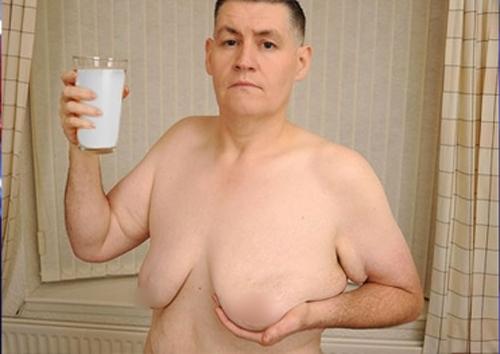Ban đầu không có điều gì bất ổn, thế nhưng sau một vài tháng, ông Wellingtion nhận thấy ngực của mình phát triển, núm vú bắt đầu nhô ra giống như một cô gái đang tuổi dậy thì.