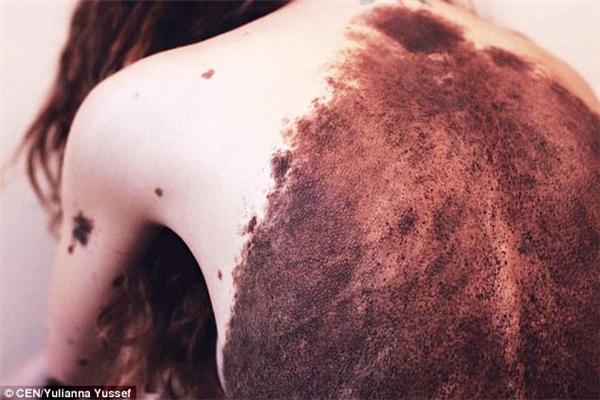 Nốt ruồi nổi dày đặc nhất là trên lưng và bụng của cô, nhưng Yulianna cũng không ngần ngại chụp lại cho mọi người thấy.