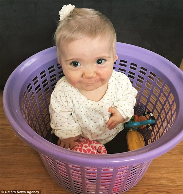 Ngay từ 6 tuầntuổi,cô béHelena Langđã được chẩn đoán mắc bệnh còi cọc Dysplasia Diastrophic