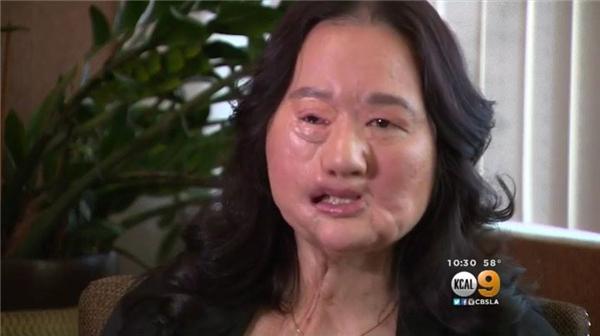 Bạn sẽ rơi nước mắt khi biết lí do người mẹ này che mặt suốt 12 năm