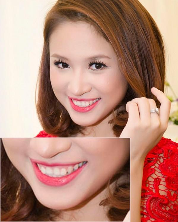 Những điểm xấu không thể phẫu thuật được của các sao nữ Việt - Tin sao Viet - Tin tuc sao Viet - Scandal sao Viet - Tin tuc cua Sao - Tin cua Sao