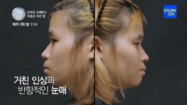 Đường nét thô kệch trên gương mặt cô gái lúc chưa phẫu thuật.