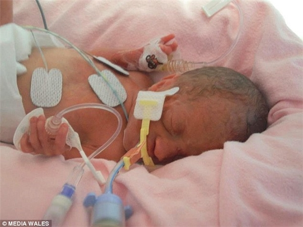Cuối cùng,Alice được rời khỏi bệnh viện khi tròn 12 tuần tuổi với cân nặng gần 2kg.(Ảnh Media Wales)